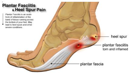 plantar-fasciitis_physiotherapy